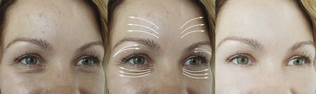 woman face wrinkles before and after treatment arrow 写真素材