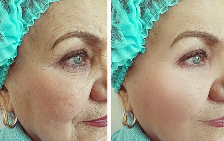 rughe del viso della donna prima e dopo il trattamento Archivio Fotografico