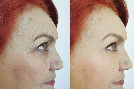 face old woman wrinkles before and after treatment Stock fotó