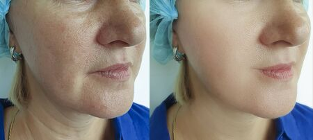 face old woman wrinkles before and after treatment 写真素材
