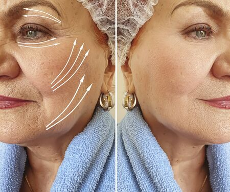 face old woman wrinkles before and after treatment, arrow, thread lifting
