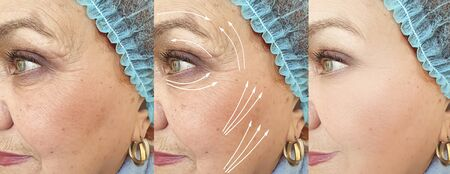 old woman wrinkles face before and after treatment