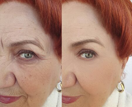 face old woman wrinkles before and after treatment Stockfoto