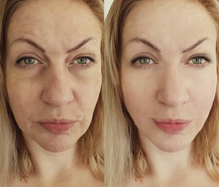 Gesichtsfalten der Frau vor und nach der Behandlung Standard-Bild