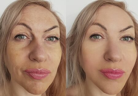 woman face wrinkles before and after treatment collage Banque d'images