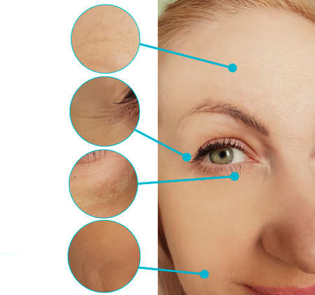 woman face wrinkles before and after collage treatment