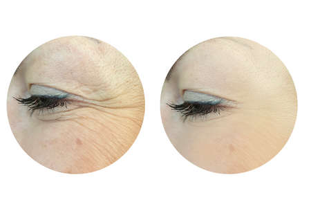 woman face wrinkles before and after treatment, collage Zdjęcie Seryjne - 151769241