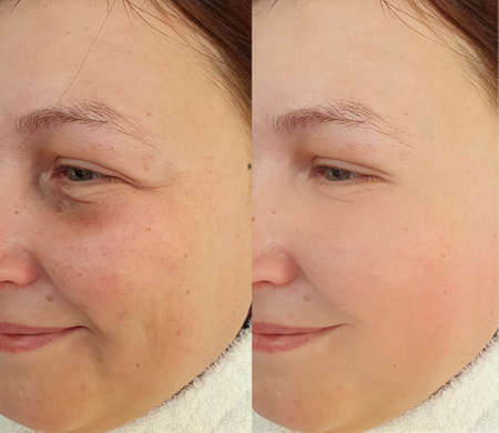 woman face wrinkles before and after treatment, collage Zdjęcie Seryjne - 151693636