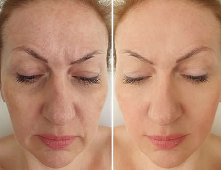 woman face wrinkles before and after treatment, collage