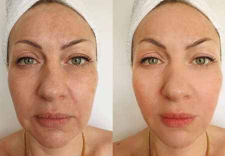 woman face wrinkles before and after treatment, collage Zdjęcie Seryjne - 151694544