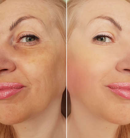 woman face wrinkles before and after treatment, collage, Foto de archivo