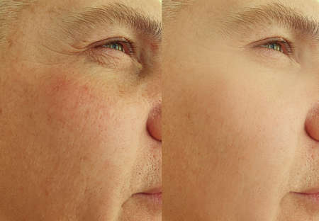 man face wrinkles before and after treatment collage