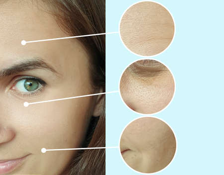 woman face wrinkles before and after treatment collage