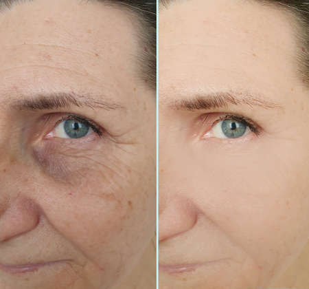 woman face wrinkles before and after treatment Foto de archivo