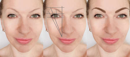 eyebrows before and after correction