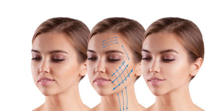 woman face lift before and after treatment Stock fotó