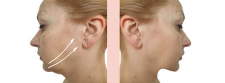 woman face double chin before and after treatment Reklamní fotografie