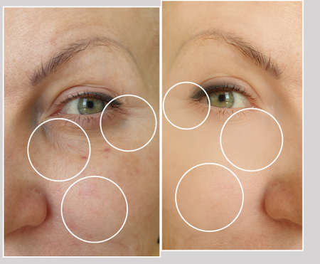 woman face wrinkles before and after treatment
