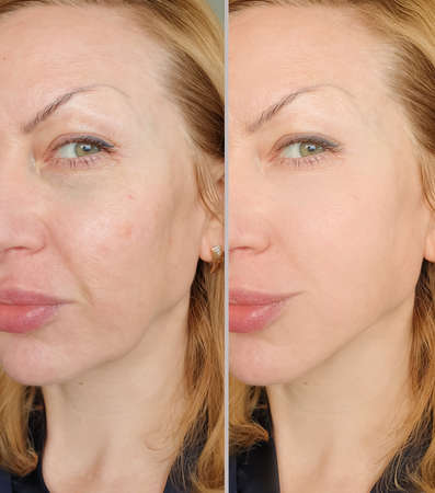 woman face wrinkles before and after treatment Imagens