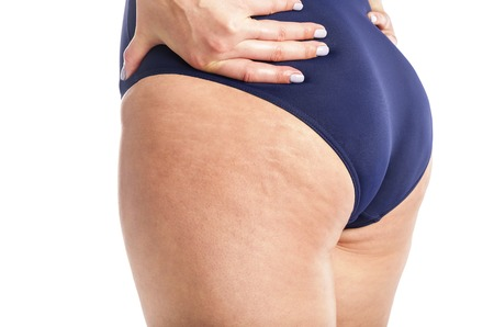 Cellulite and loose skin.