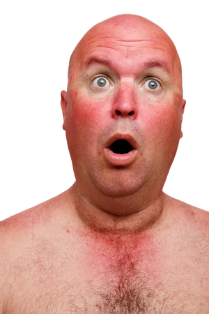 A face of a man surprised by sunburn damage.