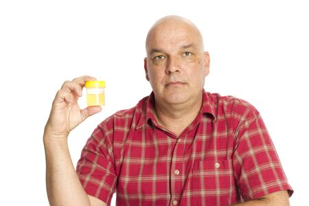 A guy holding a urine sample on white, bald from chemotherapy.
