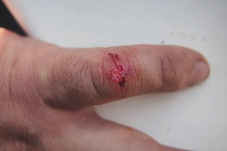 little finger: The wound on the little finger.