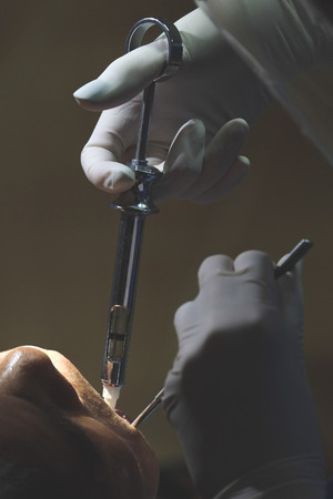 Dentist injecting anesthetic to mount of patient