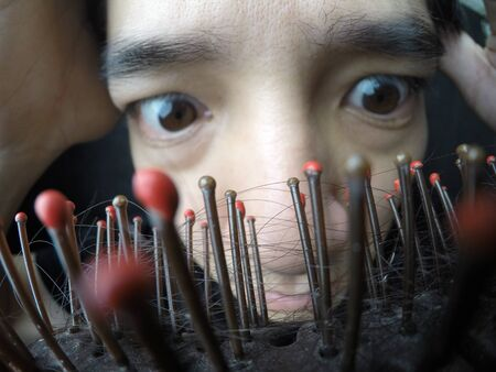 Asian man with hairloss problem. Close up selective focus on the comb