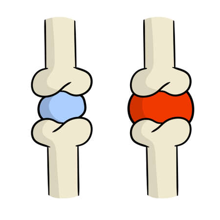 Arthritis. Disease of joints. Bones and interosseous cartilage. Biology and anatomy. Medical education and surgery. Red sore spot. Cartoon illustration Vectores