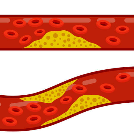Blood cholesterol. Veins and arteries with fat. Problem with vascular system. Medicine and health. Blood clot and clogged vessel. Scientific educational scheme. Flat cartoon