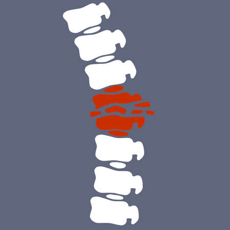 Problems with spine. Posture issues. vertebral column. Crack in the White bone. Cartoon flat illustration. Sick red place. X-ray of internal organs. Medical care. Fracture of intervertebral discs Illusztráció