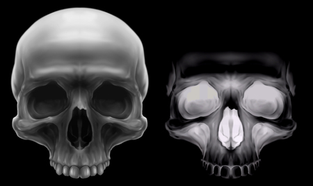 corpse: Fluorescent X-ray and grey detailed human skull on black background illustration set Stock Photo