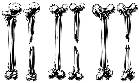 Graphic black and white broken bones vector set