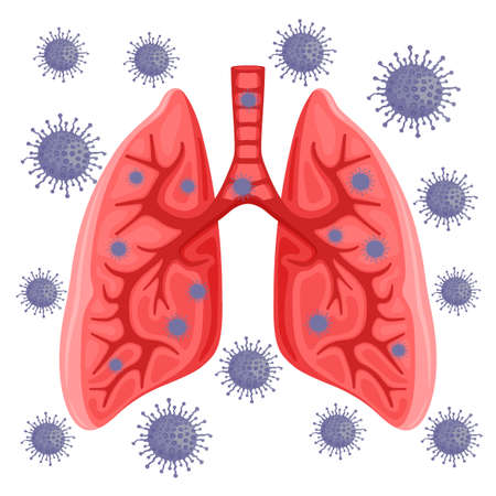 Lungs infected with virus on white background.