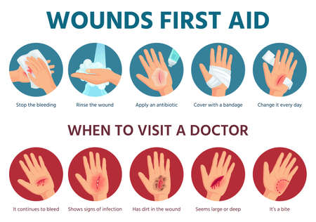 First aid for wound on skin. Treatment procedure for bleeding cut. Bandage on injured palm. Emergency situation safety infographic in vector. Illustration aid skin, injury and trauma
