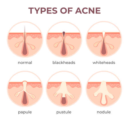 Acne types anatomy. Pimple diseases sectional view blackhead, cystic and whitehead. Structure of skin and pore infection vector infographic. Open and closed comedones. Medical disease