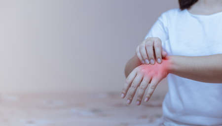 woman scratching the itch on her hands allergic reaction to insect bites, dermatitis, food, drugs. Health care concept.