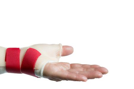 splint: Lateral de la mano izquierda con la palma hacia arriba y la muñeca y la férula pulgar Foto de archivo
