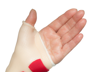 carpal tunnel syndrome: Palm of left hand with straight fingers and wrist and thumb splint Stock Photo