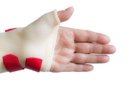 splint: Palm of left hand with straight fingers and wrist and thumb splint Stock Photo