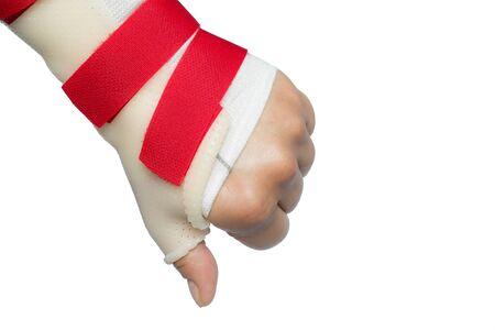 splint: Back of hand with wrist and thumb splint holding thumb down