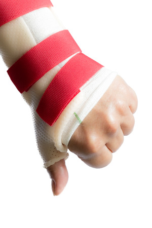 splint: Back of left hand with wrist and thumb splint holding thumb down