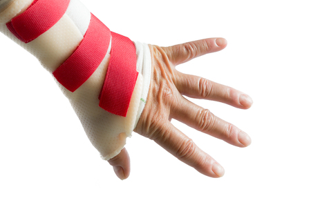 carpal tunnel syndrome: Back of left hand with spread fingers and wrist and thumb splint
