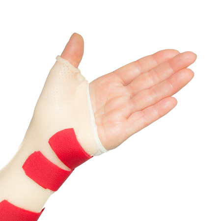 splint: Ramos de la mujer dej� la mano con la mu�eca y el pulgar f�rula Foto de archivo