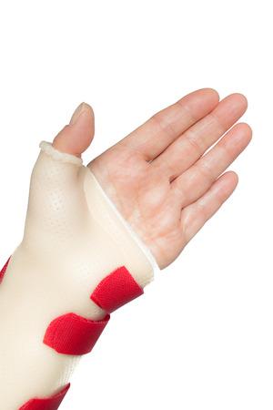 splint: Ramos de la mujer dejó la mano con la muñeca y el pulgar férula Foto de archivo