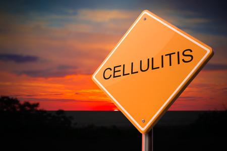 일몰 하늘 배경에 경고 도로 표지판에 Cellulitis. 스톡 콘텐츠