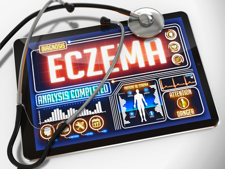eczema: Eczema - Diagnosis on the Display of Medical Tablet and a Black Stethoscope on White Background. Stock Photo