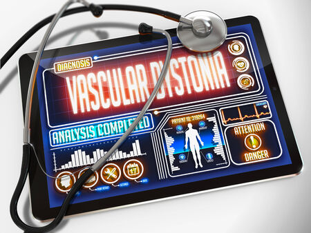 hypotension: Vascular Dystonia - Diagnosis on the Display of Medical Tablet and a Black Stethoscope on White Background. Stock Photo