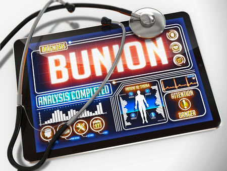 bunion: Bunion - Diagnosis on the Display of Medical Tablet and a Black Stethoscope on White Background.